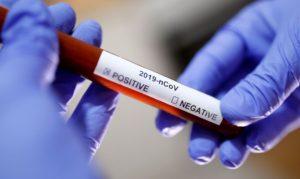 Veja Aqui os Locais Para Testes de Coronavírus no Sul da Califórnia