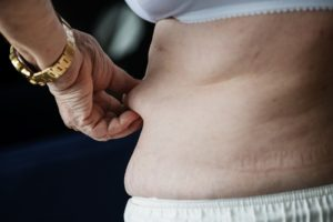 Weight Loss Myths: It Can Make you Fat